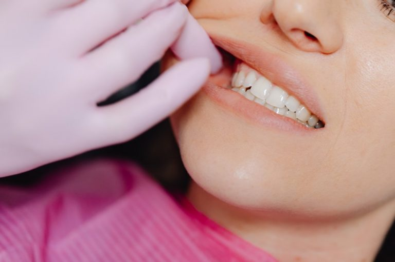 Let This Invisalign Treatment Process Work for You